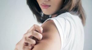 Micosi della pelle, combattiamola con 5 ingredienti naturali
